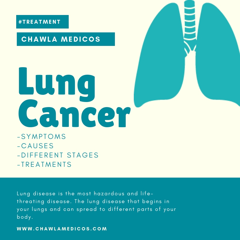 Lung cancer: Know More about Lung Cancer?